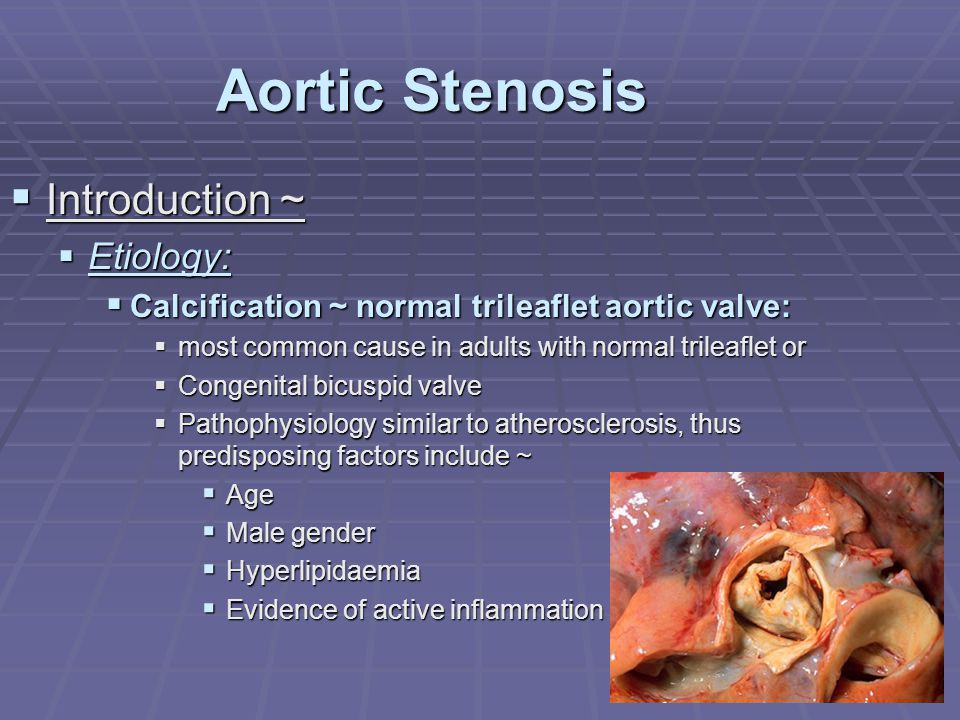 Aortic Stenosis  Introduction ~  Etiology:  Calcification ~ normal trileaflet aortic valve:  most common cause in adults with normal trileaflet or
