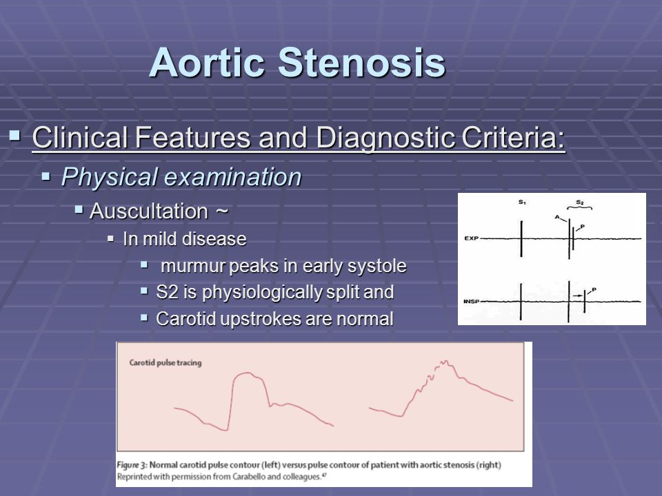 Aortic Stenosis  Clinical Features and Diagnostic Criteria:  Physical examination  Auscultation ~  In mild disease  murmur peaks in early systole
