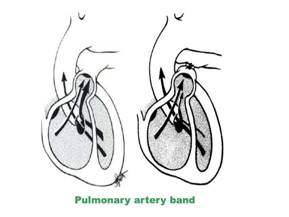 Pulmonary artery band