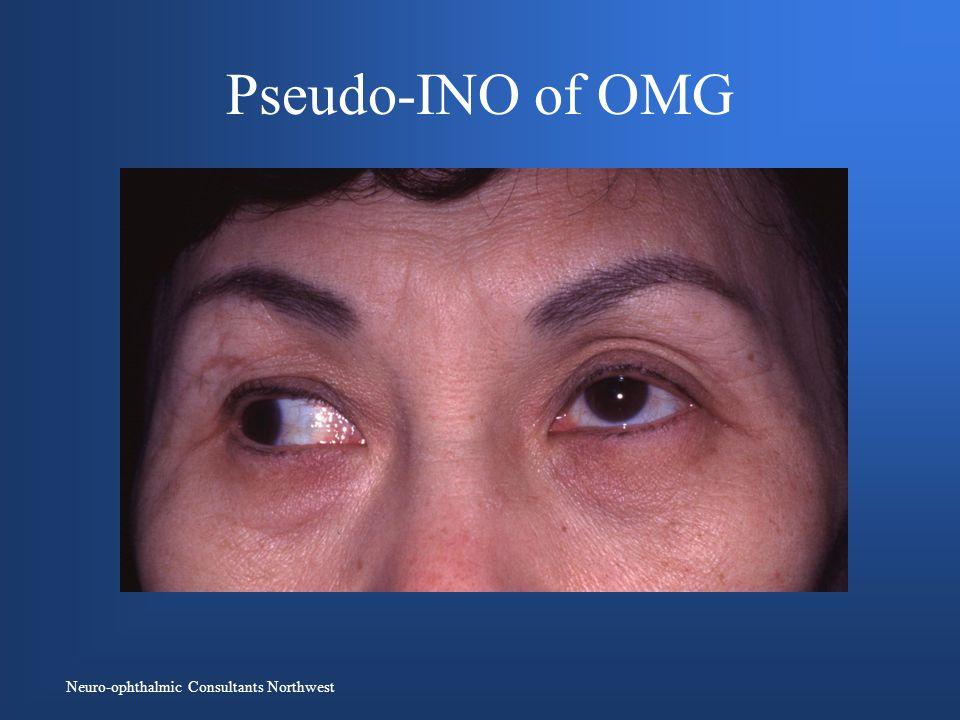Pseudo-INO of OMG