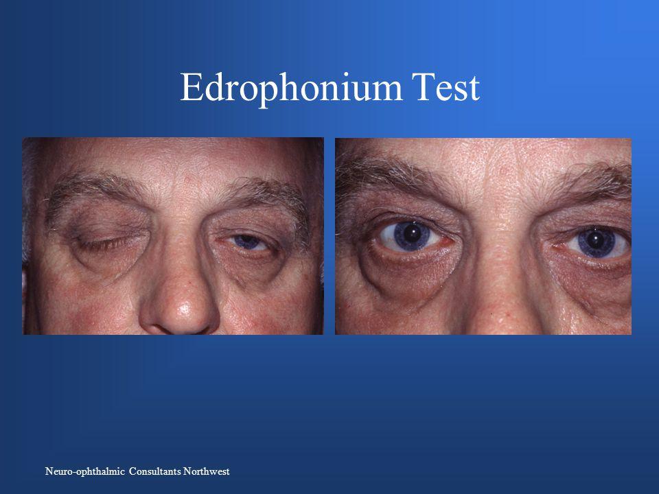 Neuro-ophthalmic Consultants Northwest Edrophonium Test