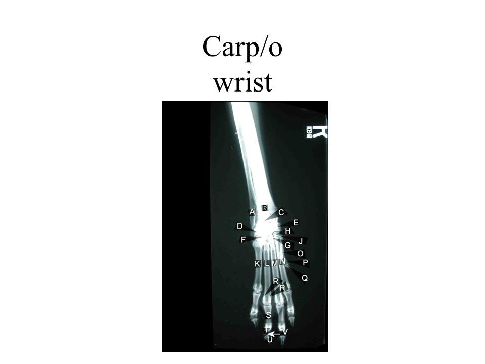 Carp/o wrist
