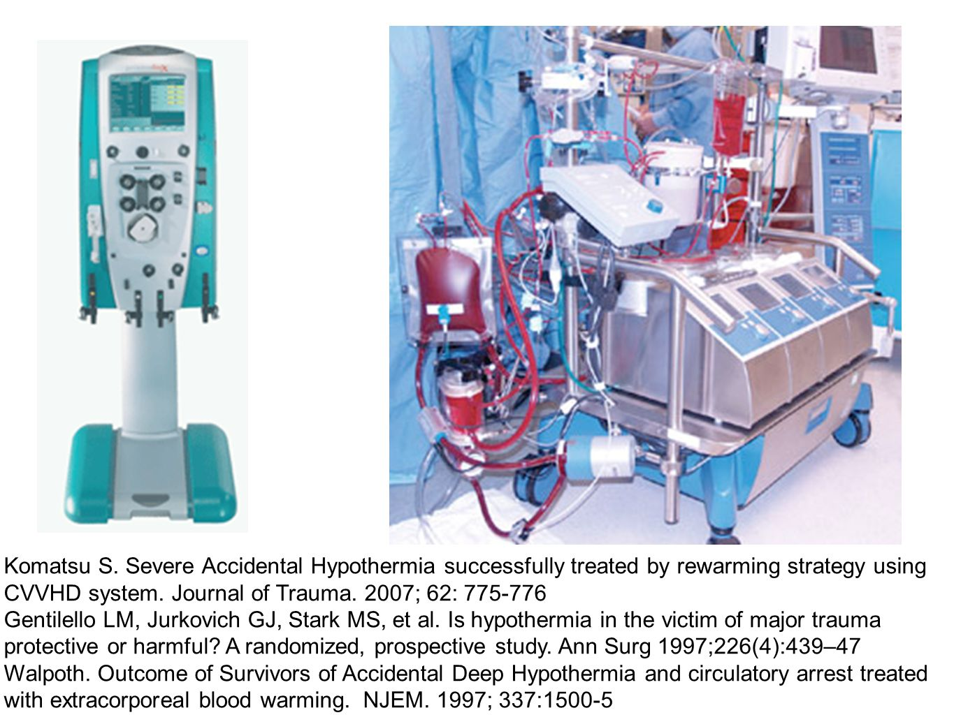 Komatsu S. Severe Accidental Hypothermia successfully treated by rewarming strategy using CVVHD system. Journal of Trauma. 2007; 62: 775-776 Gentilell