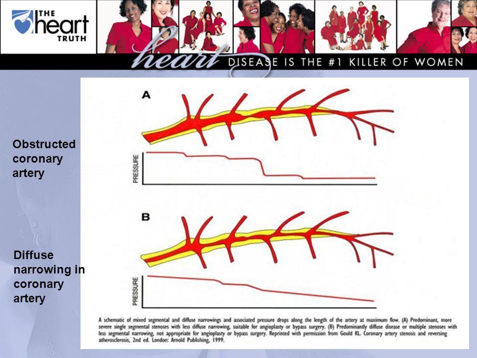 Obstructed coronary artery Diffuse narrowing in coronary artery