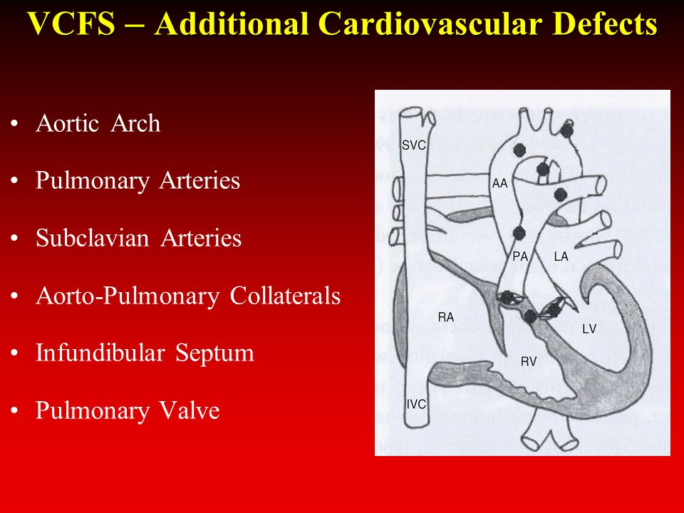 VCFS – Additional Cardiovascular Defects Aortic Arch Pulmonary Arteries Subclavian Arteries Aorto-Pulmonary Collaterals Infundibular Septum Pulmonary Valve