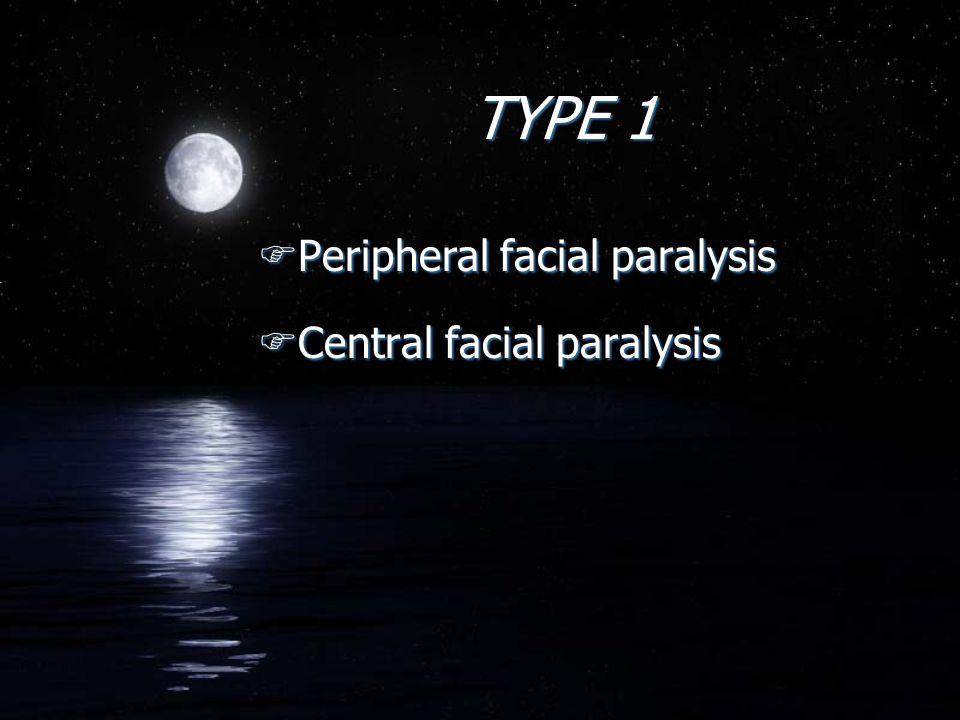 TYPE 1 FPeripheral facial paralysis FCentral facial paralysis FPeripheral facial paralysis FCentral facial paralysis