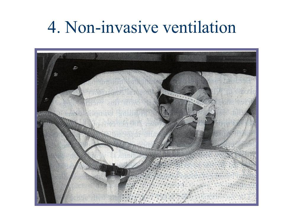 4. Non-invasive ventilation
