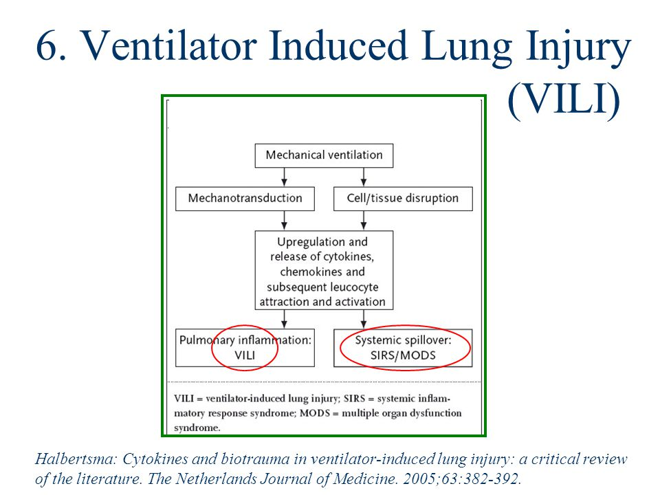 6. Ventilator Induced Lung Injury (VILI) Halbertsma: Cytokines and biotrauma in ventilator-induced lung injury: a critical review of the literature. T