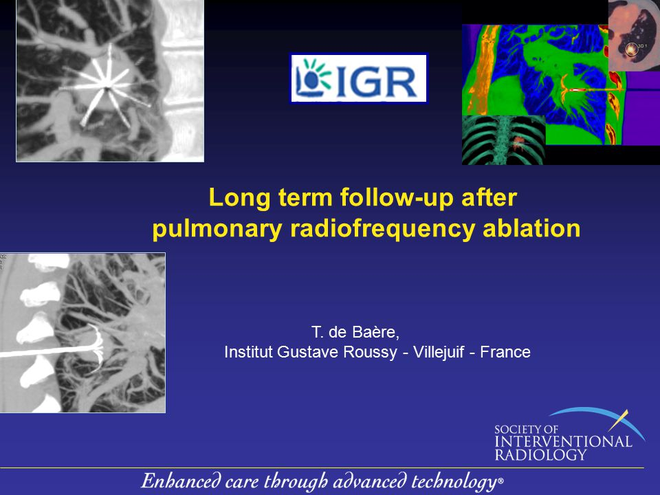 Long term follow-up after pulmonary radiofrequency ablation T.