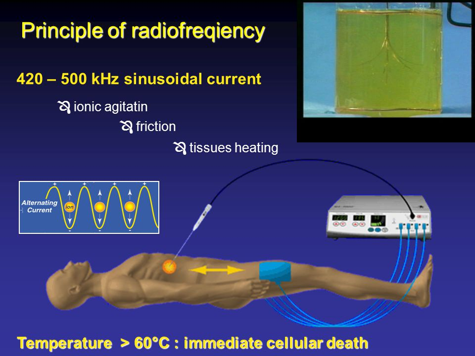 420 – 500 kHz sinusoidal current  ionic agitatin  friction  tissues heating Principle of radiofreqiency Temperature > 60°C : immediate cellular death