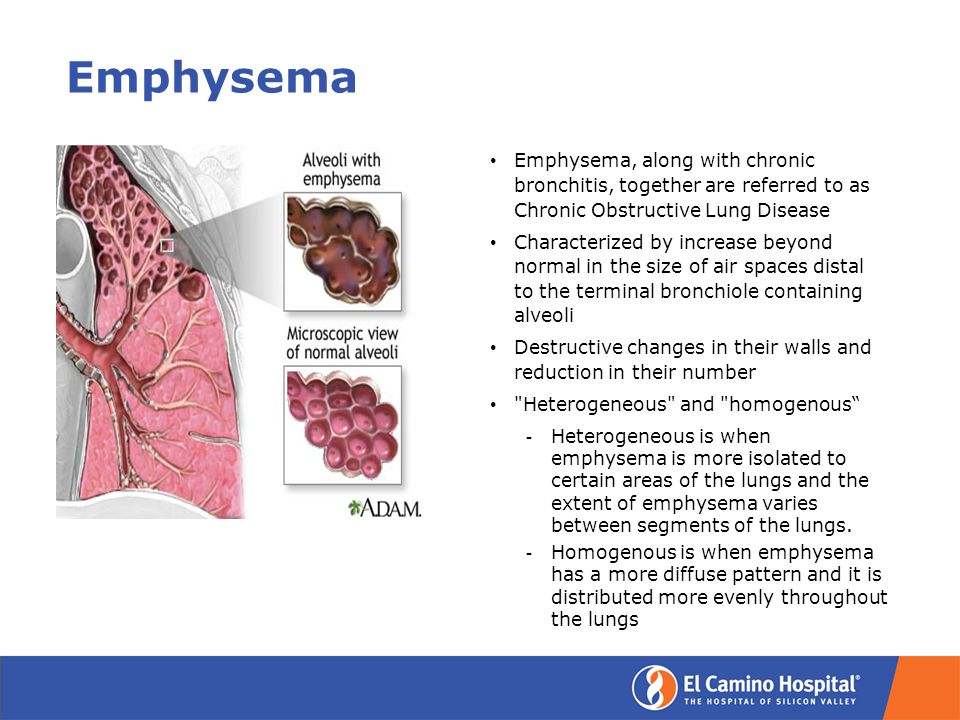 Emphysema Emphysema, along with chronic bronchitis, together are referred to as Chronic Obstructive Lung Disease Characterized by increase beyond normal in the size of air spaces distal to the terminal bronchiole containing alveoli Destructive changes in their walls and reduction in their number Heterogeneous and homogenous ­ Heterogeneous is when emphysema is more isolated to certain areas of the lungs and the extent of emphysema varies between segments of the lungs.