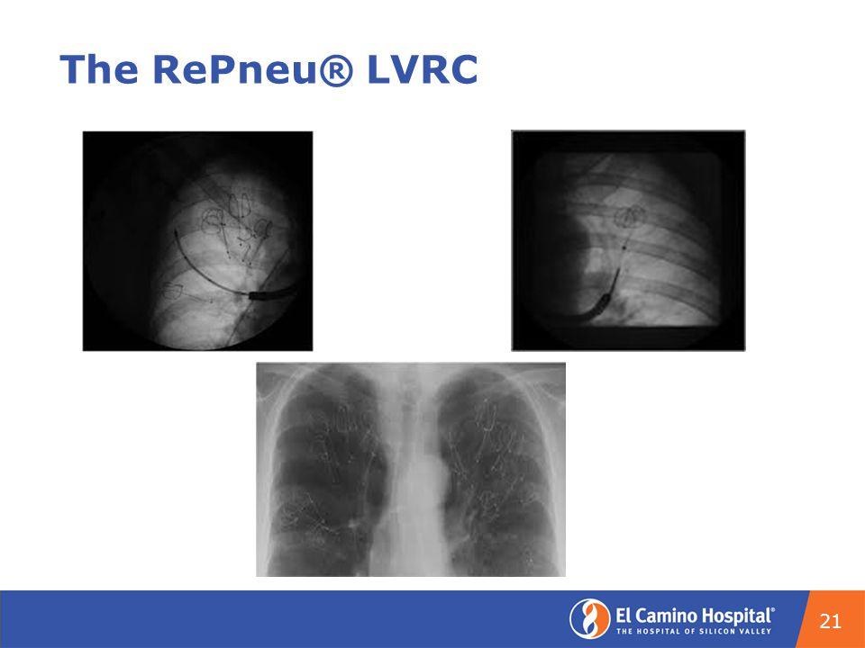 The RePneu® LVRC 21
