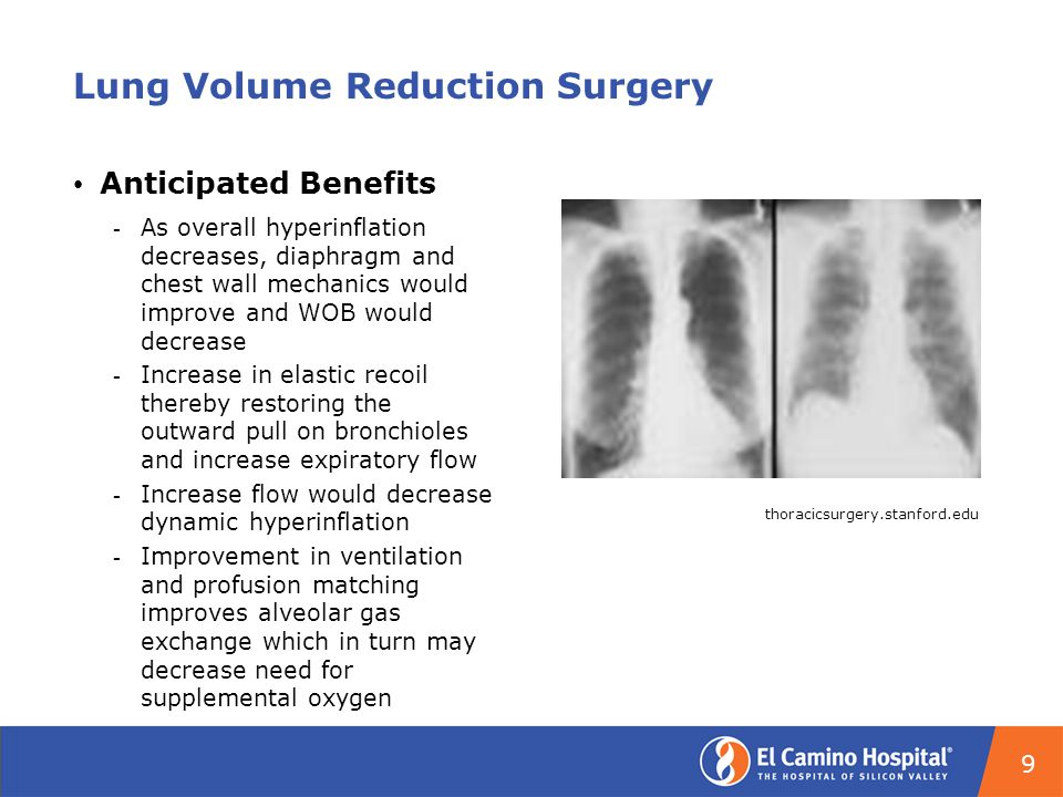 Lung Volume Reduction Surgery Anticipated Benefits ­ As overall hyperinflation decreases, diaphragm and chest wall mechanics would improve and WOB would decrease ­ Increase in elastic recoil thereby restoring the outward pull on bronchioles and increase expiratory flow ­ Increase flow would decrease dynamic hyperinflation ­ Improvement in ventilation and profusion matching improves alveolar gas exchange which in turn may decrease need for supplemental oxygen thoracicsurgery.stanford.edu 9