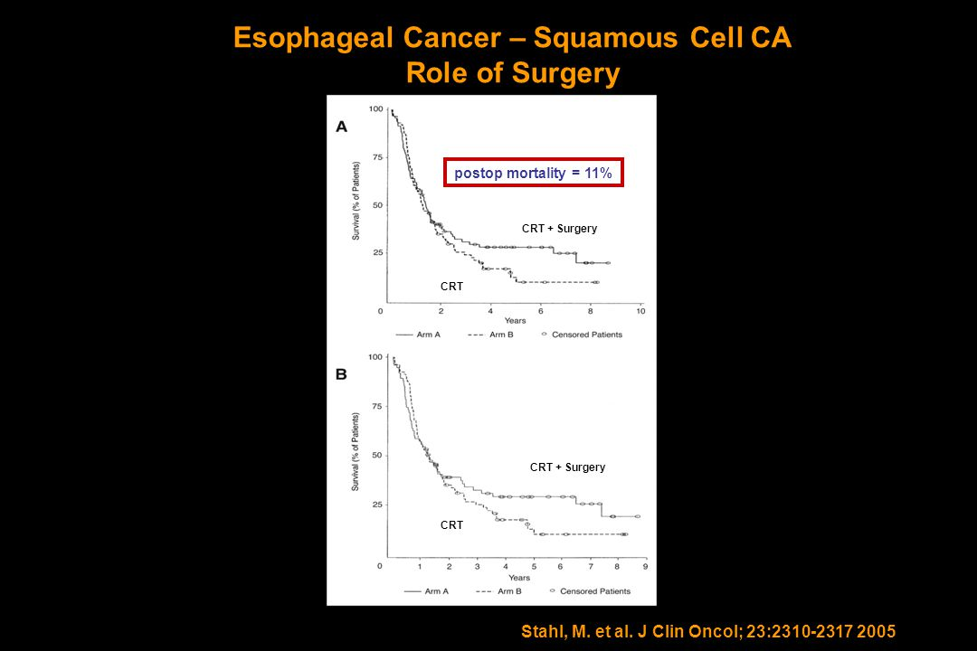 Esophageal Cancer – Squamous Cell CA Role of Surgery Stahl, M. et al. J Clin Oncol; 23:2310-2317 2005 CRT + Surgery CRT postop mortality = 11%