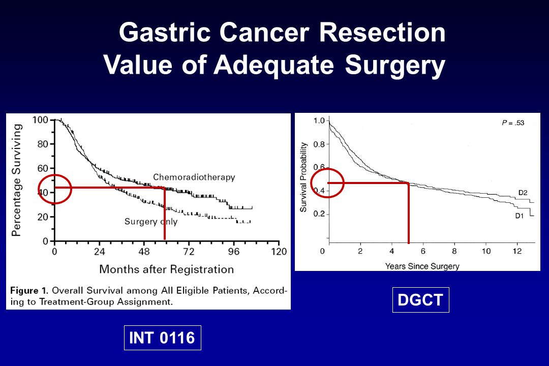INT 0116 DGCT Gastric Cancer Resection Value of Adequate Surgery