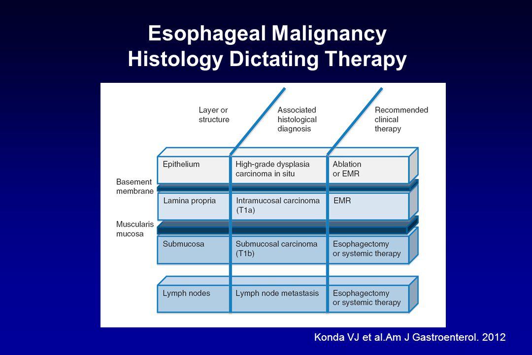 Endoscopic Mucosal Resection Barrett's Esophagus Ortiz-Fernando-Sorto J et al.