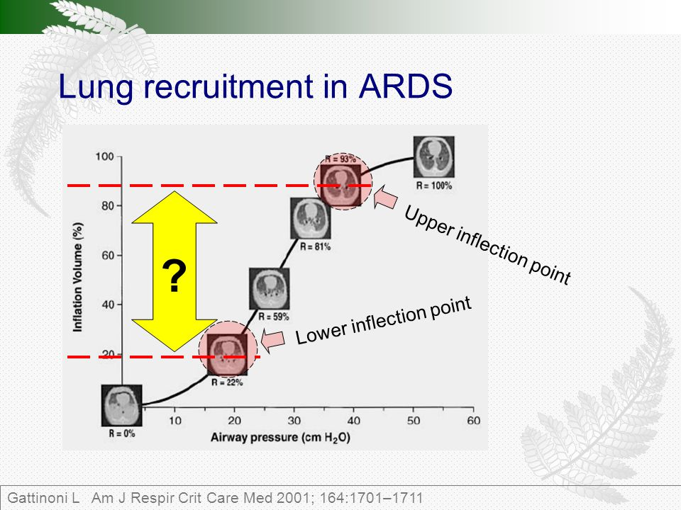 Lung recruitment in ARDS Gattinoni L Am J Respir Crit Care Med 2001; 164:1701–1711 Lower inflection point .