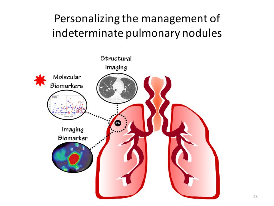 Personalizing the management of indeterminate pulmonary nodules 45