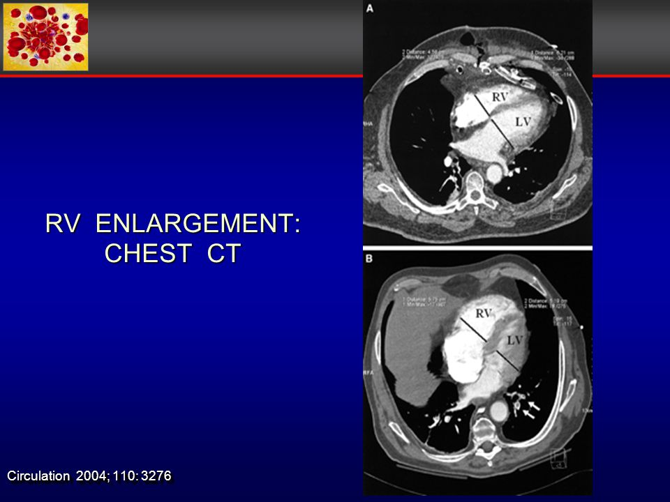 RV ENLARGEMENT: CHEST CT Circulation 2004; 110: 3276