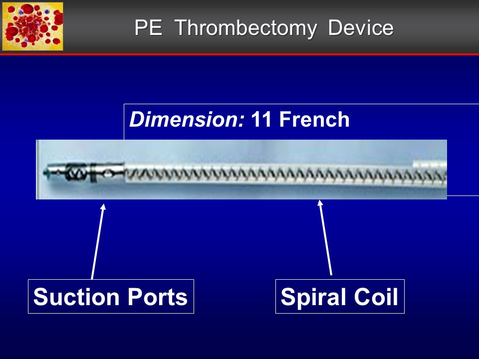 PE Thrombectomy Device Dimension: 11 French Spiral CoilSuction Ports
