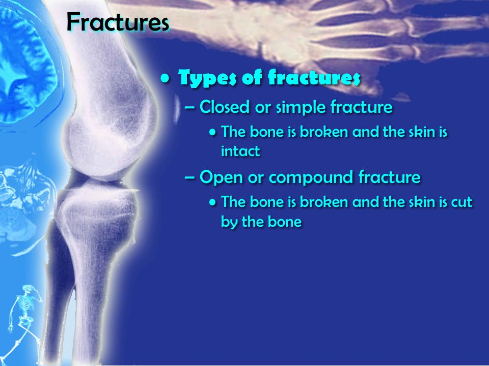 Fractures Types of fractures –Closed or simple fracture The bone is broken and the skin is intact –Open or compound fracture The bone is broken and the skin is cut by the bone Types of fractures –Closed or simple fracture The bone is broken and the skin is intact –Open or compound fracture The bone is broken and the skin is cut by the bone