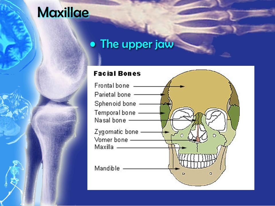 Maxillae The upper jaw