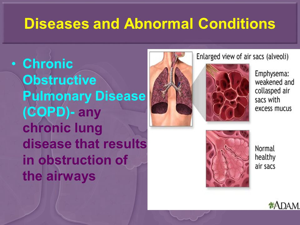 Diseases and Abnormal Conditions Chronic Obstructive Pulmonary Disease (COPD)- any chronic lung disease that results in obstruction of the airways