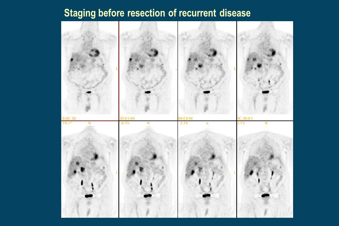 Staging before resection of recurrent disease
