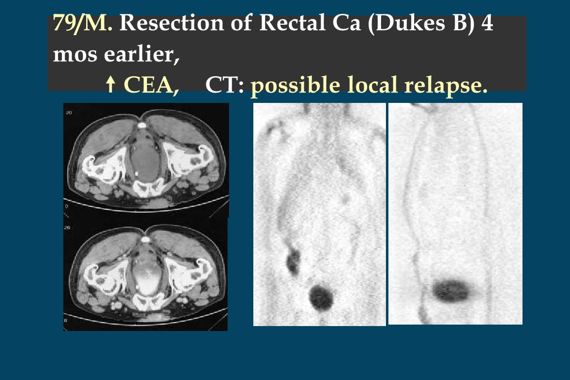 79/M. Resection of Rectal Ca (Dukes B) 4 mos earlier,  CEA, CT: possible local relapse.