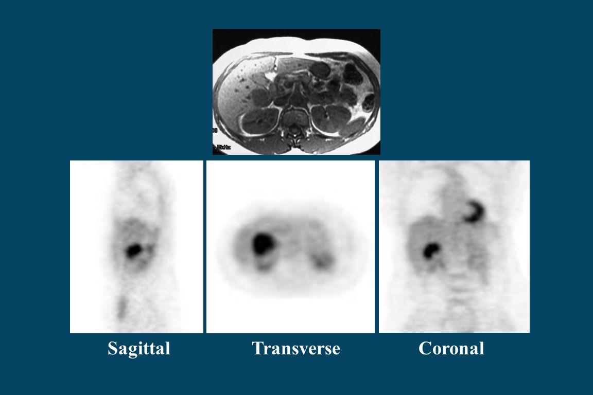 Sagittal Transverse Coronal
