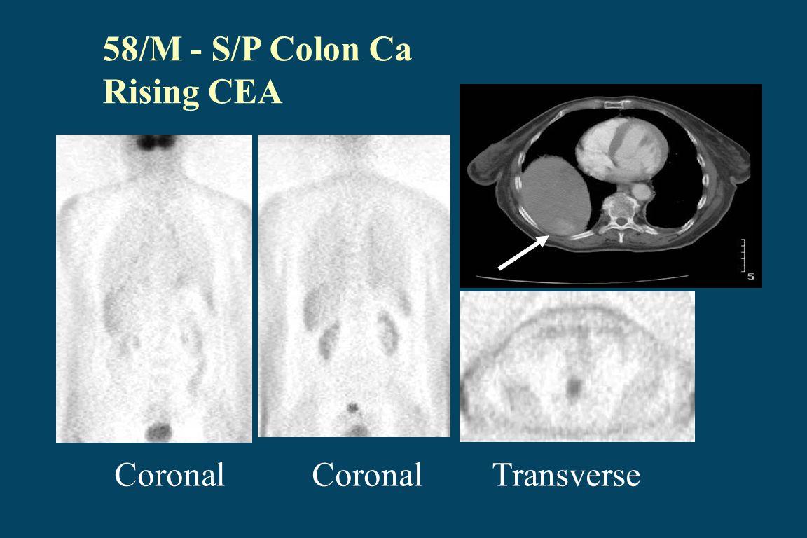 58/M - S/P Colon Ca Rising CEA Coronal Coronal Transverse