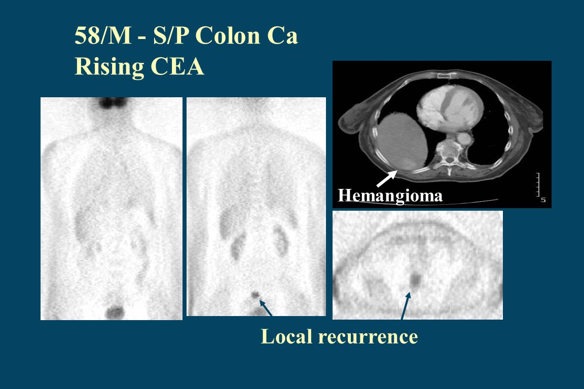 58/M - S/P Colon Ca Rising CEA Local recurrence Hemangioma