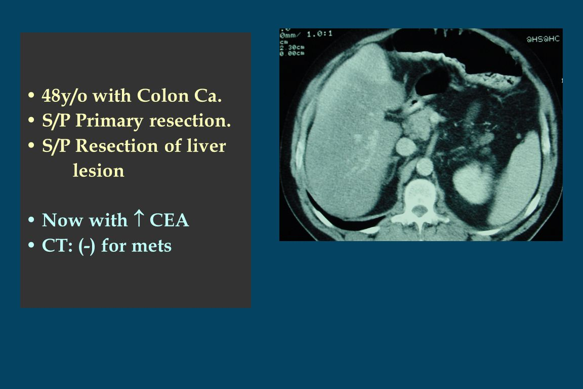 48y/o with Colon Ca. S/P Primary resection.