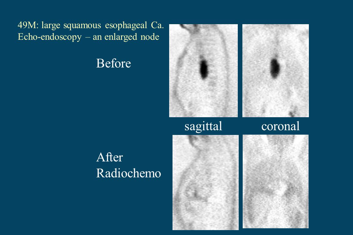 Before sagittal coronal After Radiochemo 49M: large squamous esophageal Ca.