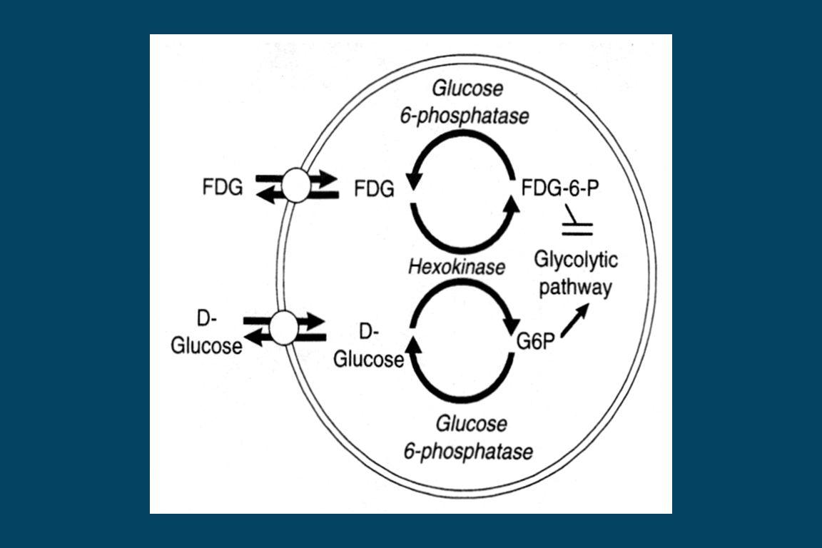 Thyroid Cancer Thyroglobulin (+) Iodine-131 scan (-)  FDG PET scan is useful.