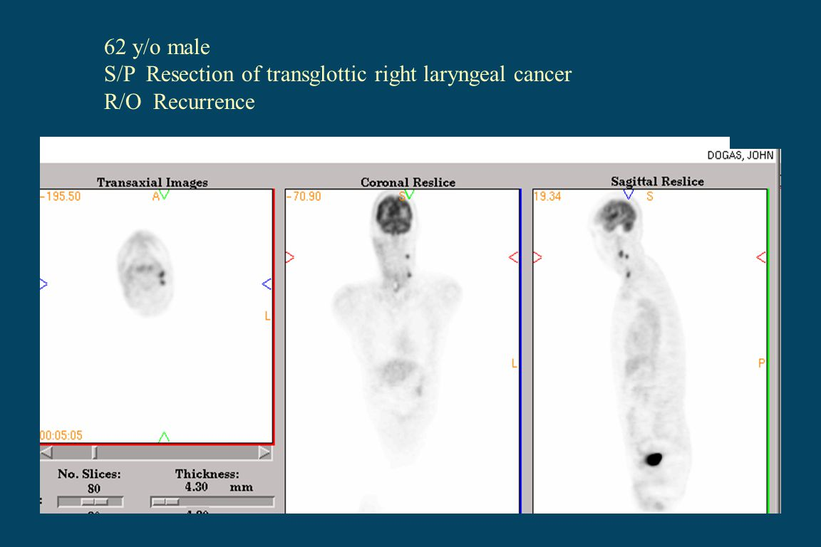 62 y/o male S/P Resection of transglottic right laryngeal cancer R/O Recurrence