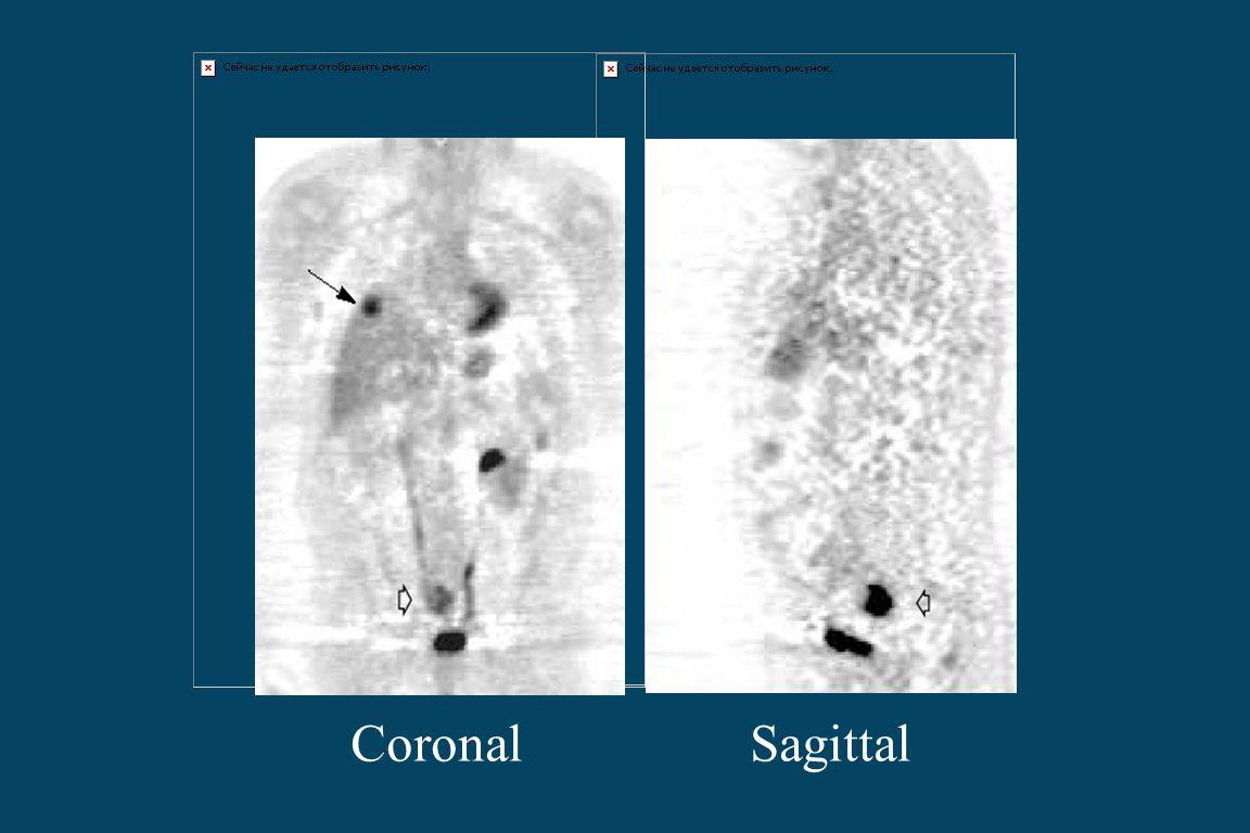 Coronal Sagittal