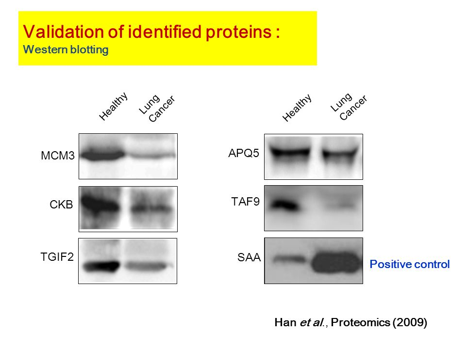MCM3 CKB TGIF2 Healthy Lung Cancer TAF9 APQ5 SAA Healthy Lung Cancer Validation of identified proteins : Western blotting Positive control Han et al., Proteomics (2009)