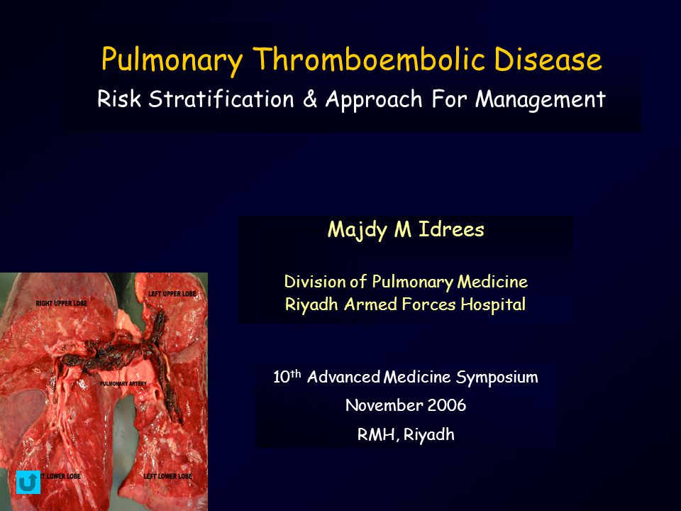 Submassive Pulmonary Embolism Diagnostic-Therapeutic Approach Non Shock Start Heparin Establish Diagnosis Spiral CT Scan V/Q Scan Angiogram - Pursue Alternative Diagnosis + BNP / Troponin NormalElevated Low Risk Heparin High Risk Floor or Outpatient Echo RV Normal RV Dysfxn Heparin Vs Lysis