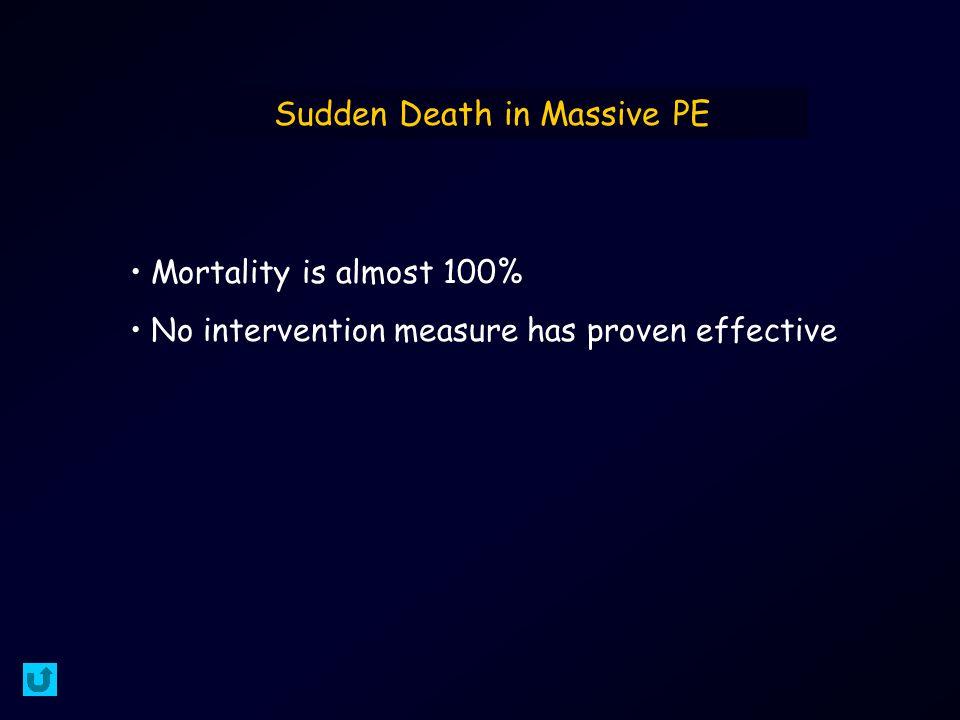 Sudden Death in Massive PE Mortality is almost 100% No intervention measure has proven effective