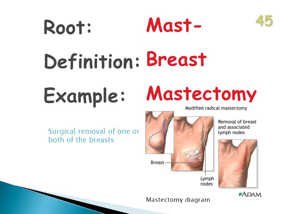 45 Root: Definition: Example: Mast- Breast Mastectomy Surgical removal of one or both of the breasts Mastectomy diagram