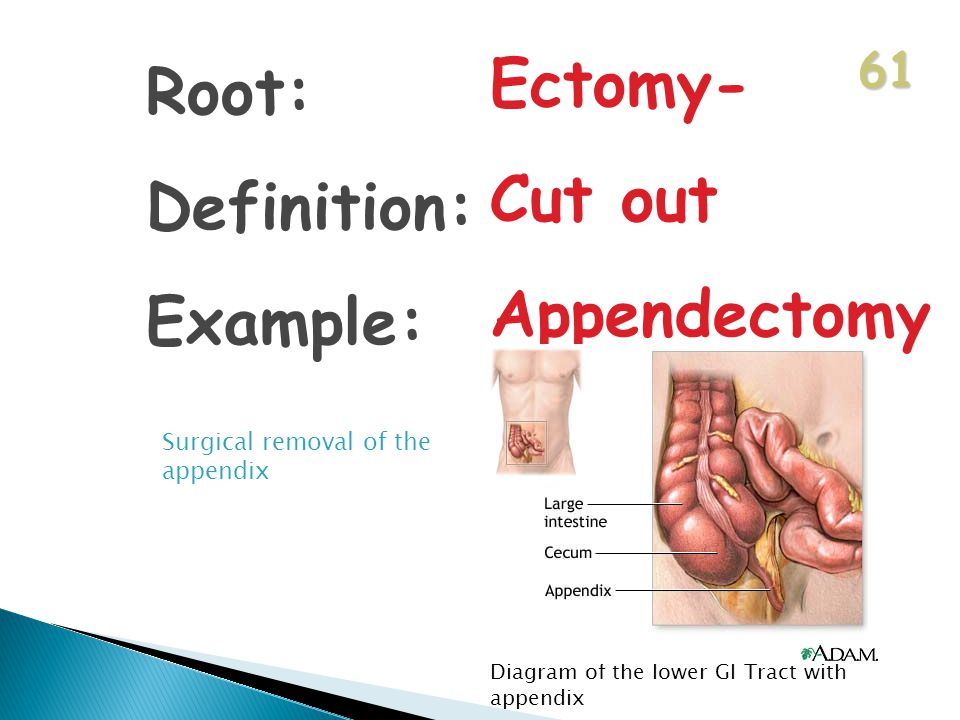 61 Root: Definition: Example: Ectomy- Cut out Appendectomy Surgical removal of the appendix Diagram of the lower GI Tract with appendix