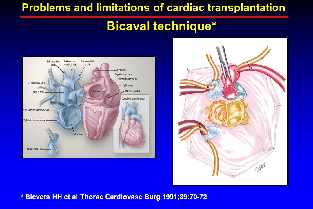 Bicaval technique* Problems and limitations of cardiac transplantation * Sievers HH et al Thorac Cardiovasc Surg 1991;39:70-72