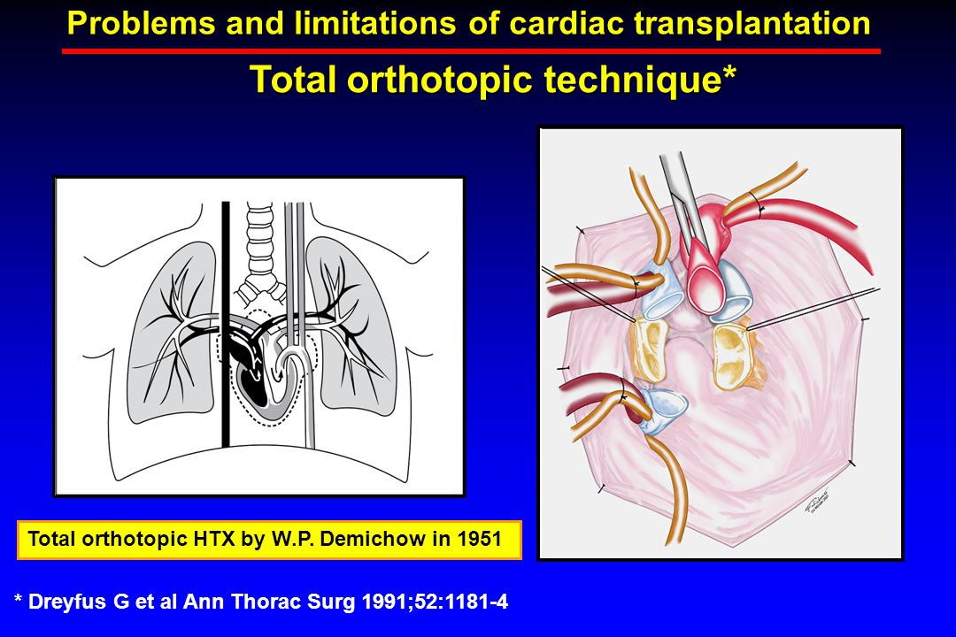 Total orthotopic technique* Problems and limitations of cardiac transplantation Total orthotopic HTX by W.P.