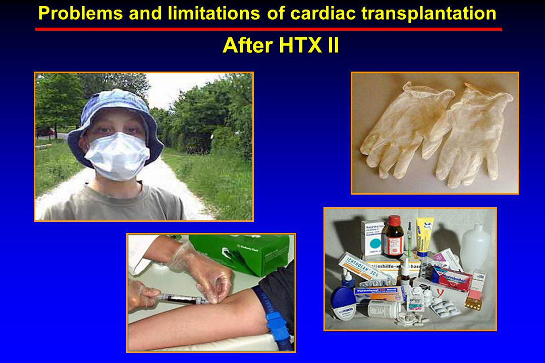 After HTX II Problems and limitations of cardiac transplantation