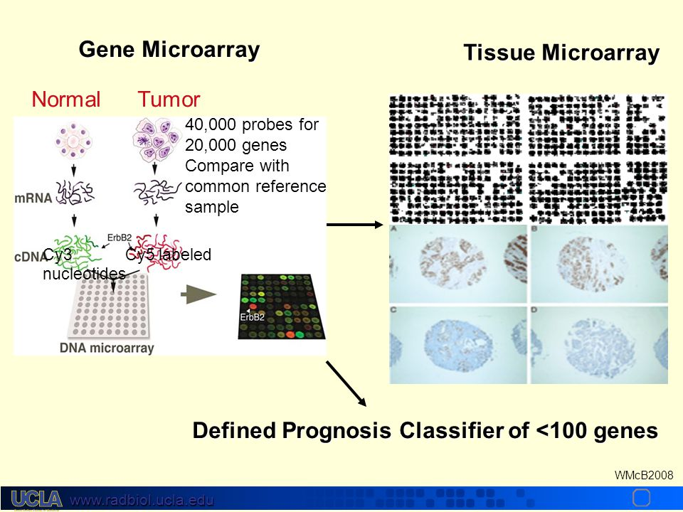 www.radbiol.ucla.edu WMcB2008 Cy3 Cy5 labeled nucleotides Normal Tumor 40,000 probes for 20,000 genes Compare with common reference sample Tissue Microarray Defined Prognosis Classifier of <100 genes Gene Microarray