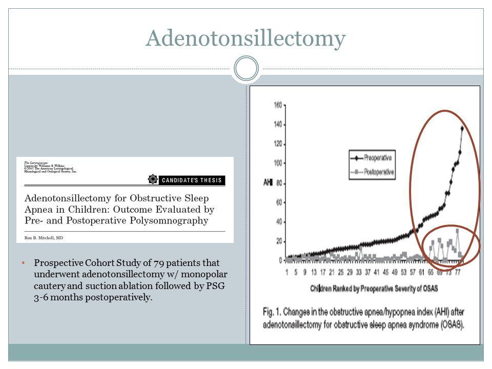 Adenotonsillectomy Prospective Cohort Study of 79 patients that underwent adenotonsillectomy w/ monopolar cautery and suction ablation followed by PSG 3-6 months postoperatively.