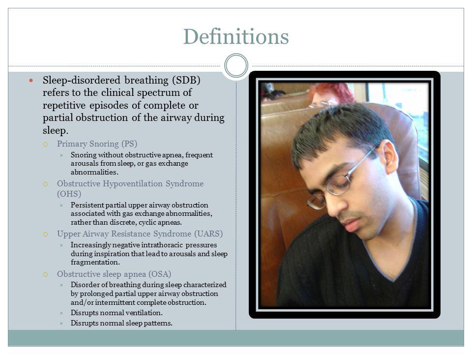 Maxillary/Mandibular Distraction Review of surgical management of pediatric OSA.