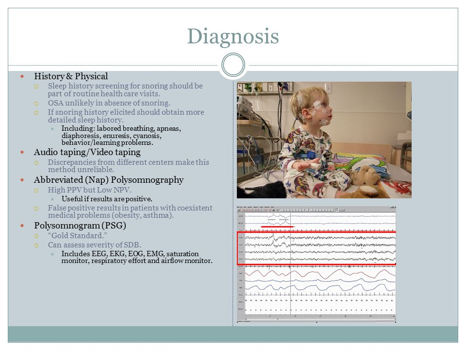 Diagnosis Apnea  Any pause in respiration. Versus at least 10 s in adults.