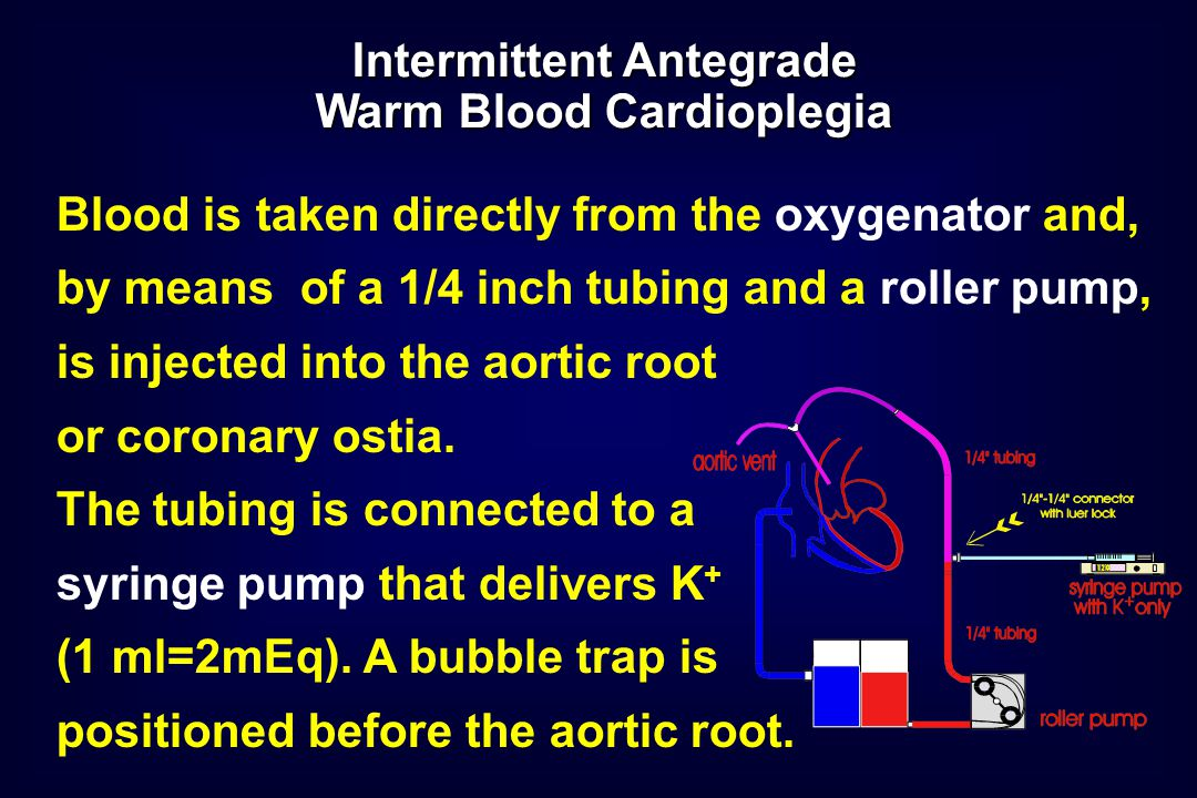 Blood is taken directly from the oxygenator and, by means of a 1/4 inch tubing and a roller pump, is injected into the aortic root or coronary ostia.